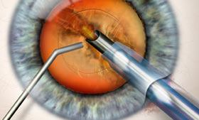 cataract-surgery-thumb